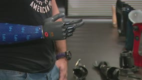 Westlake Village prosthetics company tests state-of-the-art bionic arm