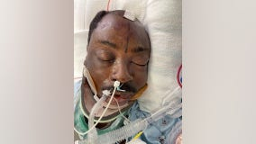 Officials need help identifying ICU patient struck by car while riding bike along the PCH