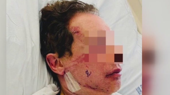 Man recounts brutal attack in his Studio city driveway, suspect still wanted
