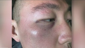 Alleged attack against man in Koreatown part of growing trend of Asian American hate crimes