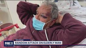 Elderly man suffers serious head injuries after random attack in Baldwin Park