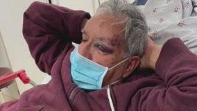 'My dad didn't deserve this': Elderly man victim of suspected random attack in Baldwin Park