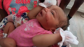 Newborn baby's face gets cut during emergency C-section