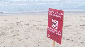 Sewage spill shuts down certain LA beaches to swimmers, surfers