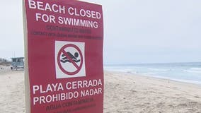Health warnings issued for beaches in San Pedro, Marina del Rey due to high bacteria level in water