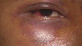 Surveillance video shows street vendor brutally beaten in San Bernardino
