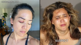 Former 'Survivor' contestant Michelle Yi attacked by homeless woman in Santa Monica, police say
