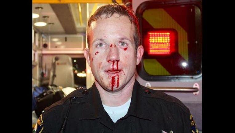 e98402ff-Richmond_officer_injured_1490885638714.JPG