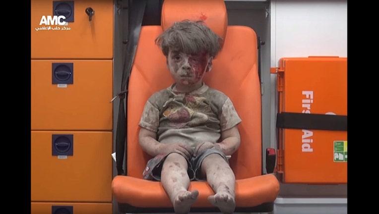 Injured boy from Aleppo_1471540173135