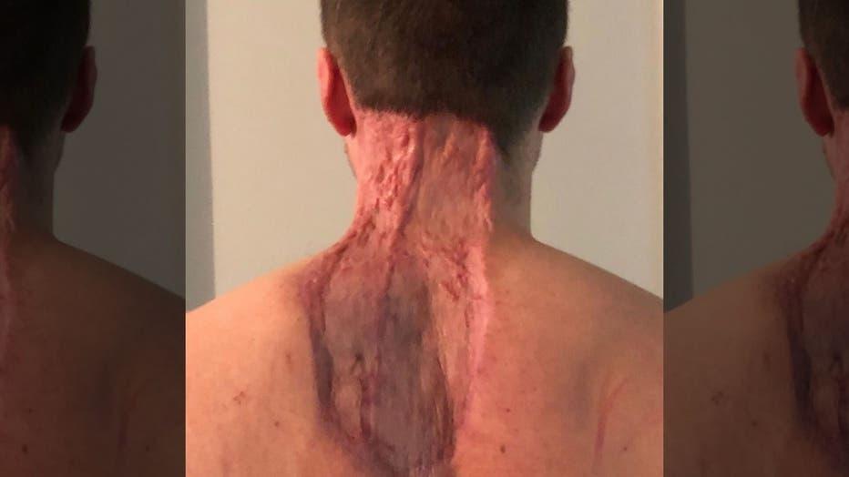 skin-spot-4.jpg