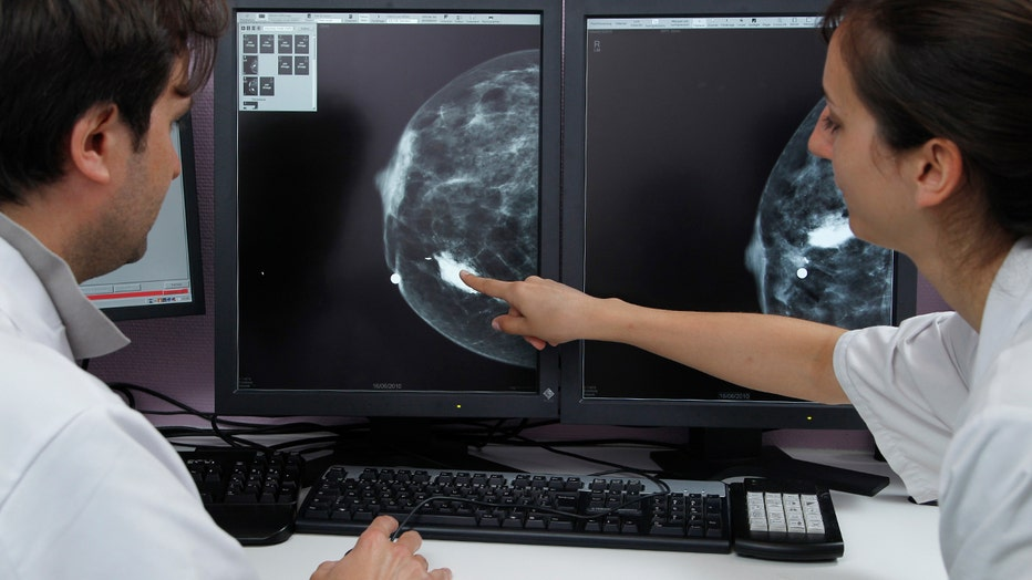 Doctors examine an x-ray of a breast tumor.