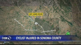Cyclist injured in Sonoma County