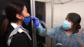 United Airlines will start offering rapid COVID-19 tests to some passengers at SFO