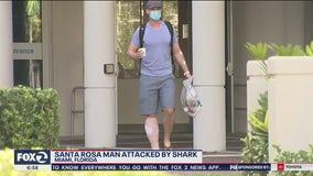 Santa Rosa man survives shark attack: 'Luckily it didn't hurt'