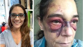 Grandma ends up bruised in Santa Rita Jail after calling 911 for help