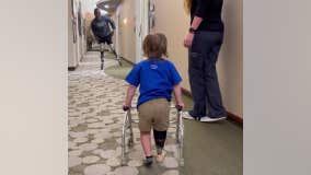 Paralympic medalist cheers on little boy taking first steps with prosthetic leg