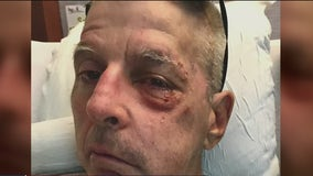 Family speaks out after victim hit by own truck during SF theft