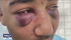 Two former Stockton police officers indicted on felony charges in beating of teen