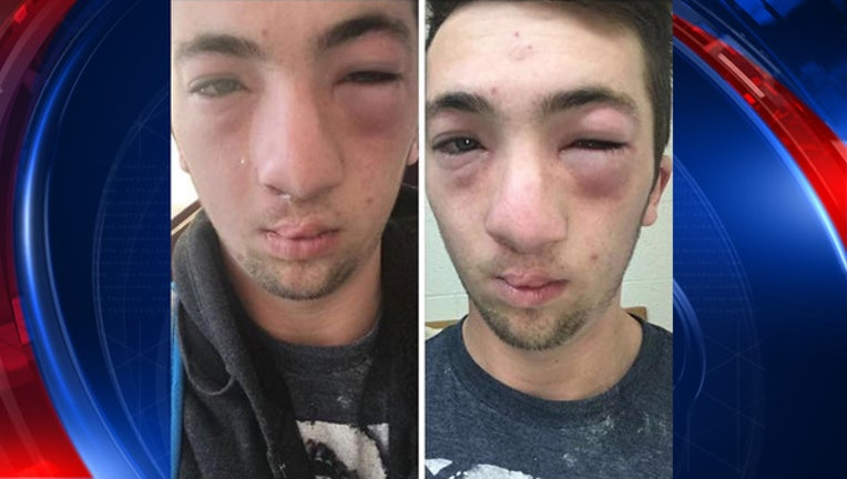 5ecbc6ab-allergy-hazing-bkgd_1488465285738-65880.jpg
