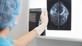 Washington state sues fake breast cancer charity; wins $500,000