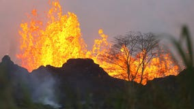 First major injury from Hawaiian volcano reported