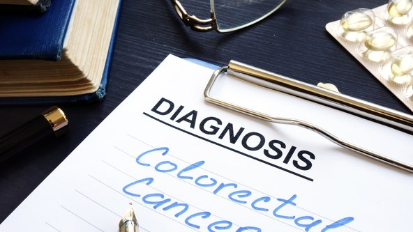 Healthy Living: Colon cancer risk factors increasing in millennials