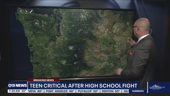 Teen critical after high school fight