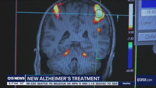 New Alzheimer's treatment