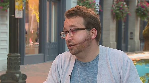 'This is what happens when you don't try to take care of the city:' Man stabbed while walking dogs speaks out