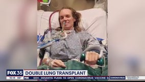 COVID-19 survivor receives double lung transplant at UF Health