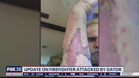 Local paramedic who nearly lost arm to alligator recovering