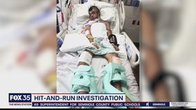 Hit-and-run leaves man on life support
