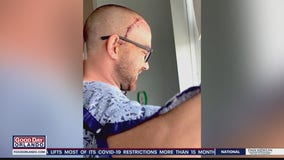 Ocoee Fire Department goes above and beyond to help firefighter with brain tumor