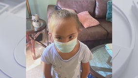Father of child with Down syndrome says mask was tied around his daughter's head